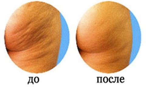 эффект вакуумного массажа от целлюлита