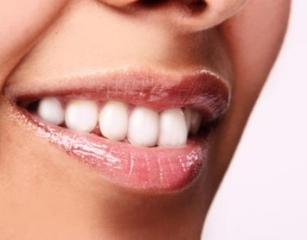 отбеливание зубов на пионерской